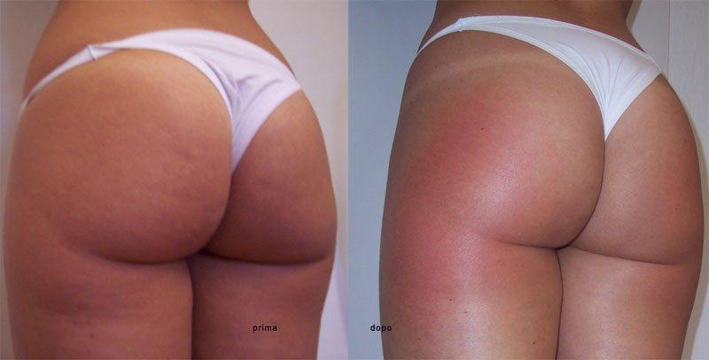Prima e dopo un trattamento di ultrasuoni